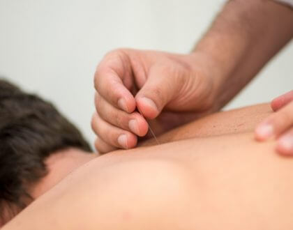 Dry Needling and Muscle Pain